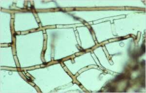 Close-up of fungal hyphae; showing cell walls